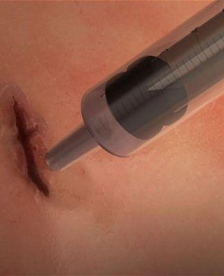 Engineers Develop Life-Saving Medical Glue